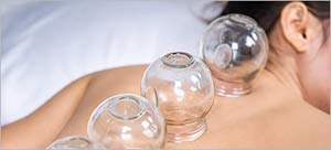 Cupping Therapy Near Me in Huntington Beach, CA